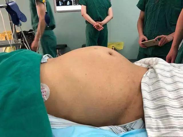 儿子:我爸最近胖了,医生:不是胖,是肚里有个15斤的瘤