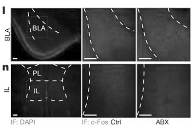 最新研究发现微生物来源的信号 可以改变相关的神经元功能和结构