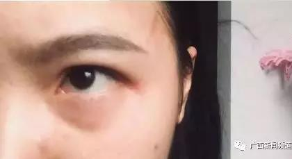 两女生在宿舍被多名同学殴打一小时,校方:建议走司法程序