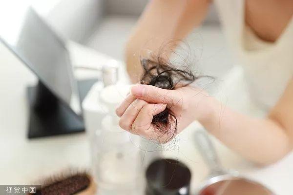 95后刚工作没多久就脱发:购物车加几瓶洗发水自我安慰
