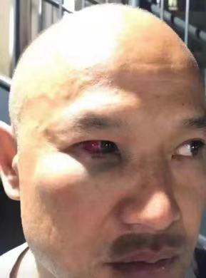 照片显示,白衣警察刘Sir的眼眶已经充血。(图源:港媒)